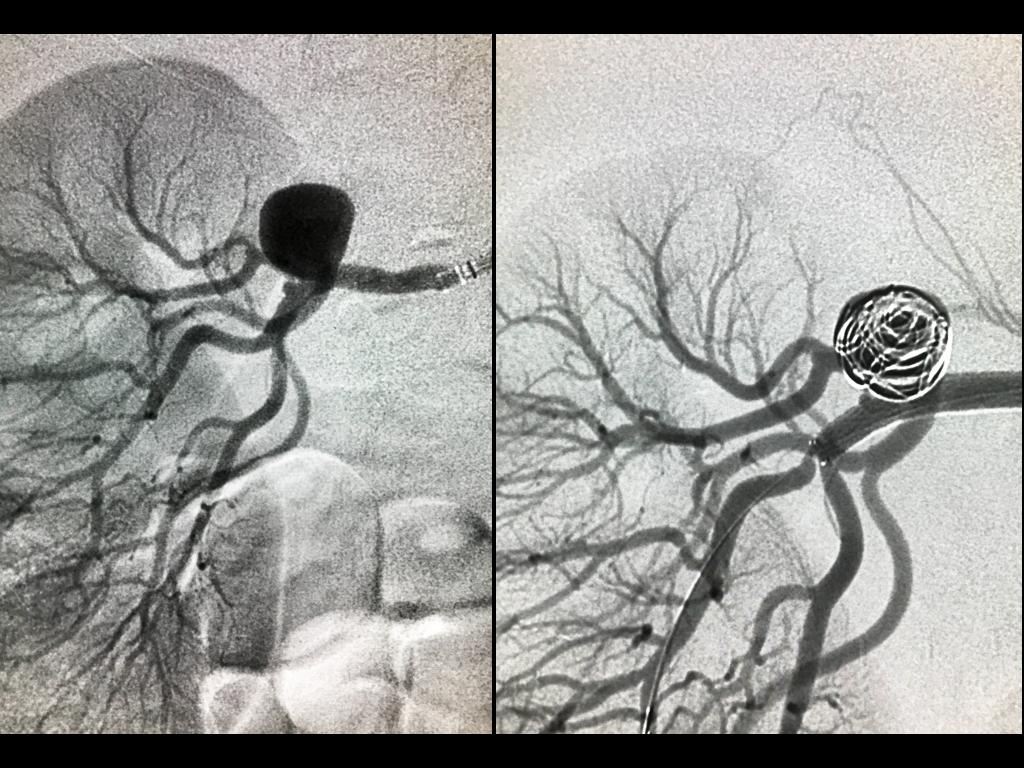 Embolización aneurisma renal